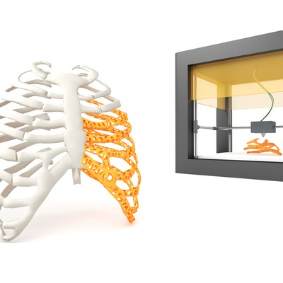 3D Printing Plastics for Medical Industry