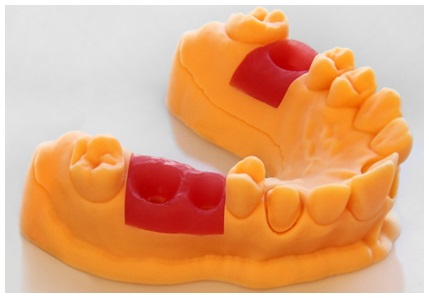 EnvisionTEC Unveils FDA-approved 3D Printing Photopolymers for Dental Model