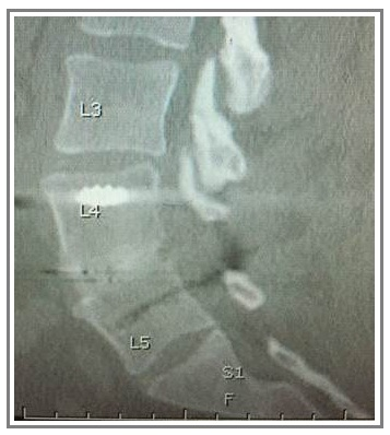 Solid Lumbar Fusion at 6 Months on CT Scan with the EVOS-HA Lumbar Interbody System from Cutting Edge Spine